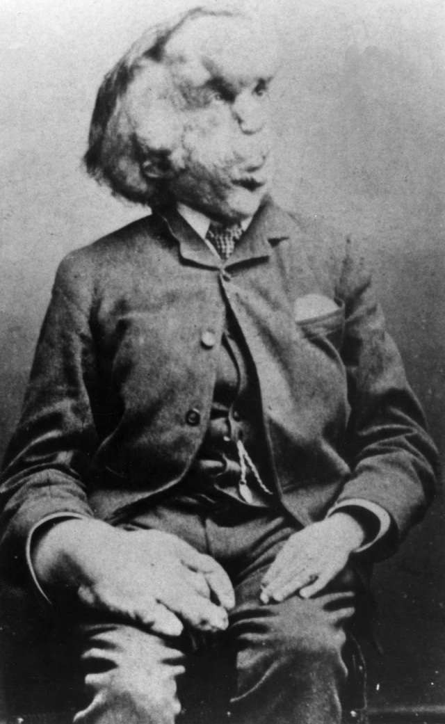 Joseph_Merrick_carte_de_visite_photo,_c._1889